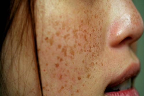 What-causes-dark-spots
